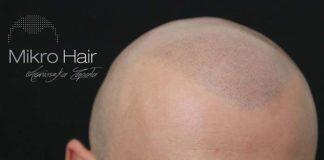 Szkolenie z mikropigmentacji skóry – czas na naukę!