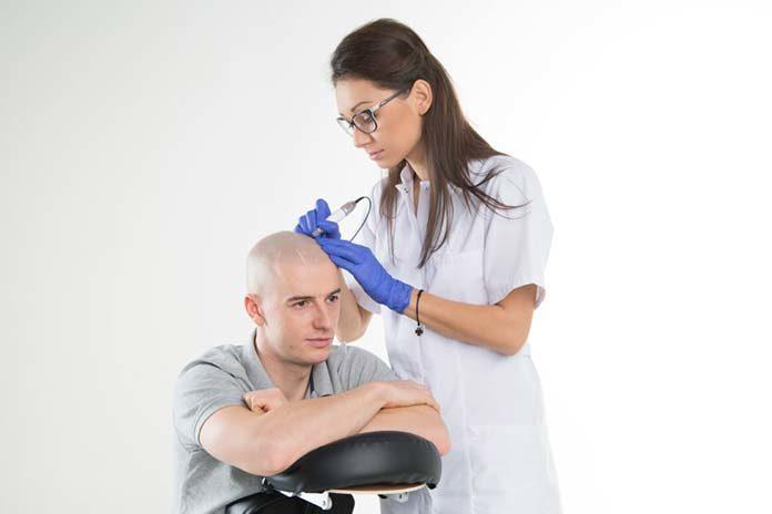 Mikropigmentacja włosów - jak skutecznie ukryć oznaki łysienia?